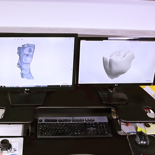 Modern technology such as CAD is used to create dental restorations