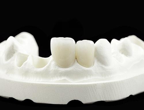 A few teeth molds from our Digital Dental Lab
